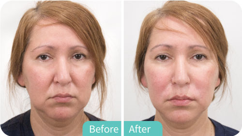 Treatment - Radiesse Plus | Arcadia Medical & Cosmetic Center