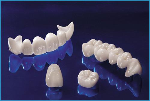 Răng sứ Ceramill thẩm mỹ - Lựa chọn hoàn hảo cho nụ cười xinh