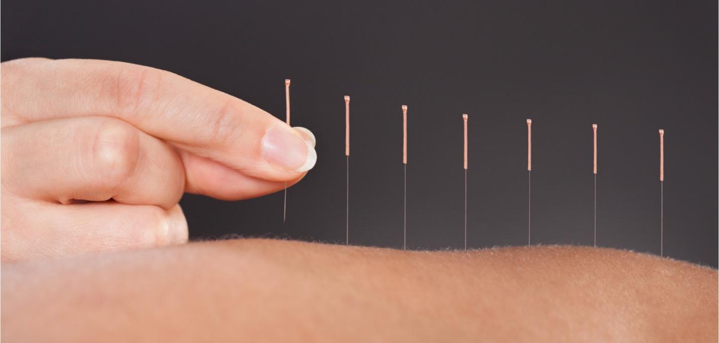 6 Tips on How to Find Registered Acupuncture Clinics Near You!
