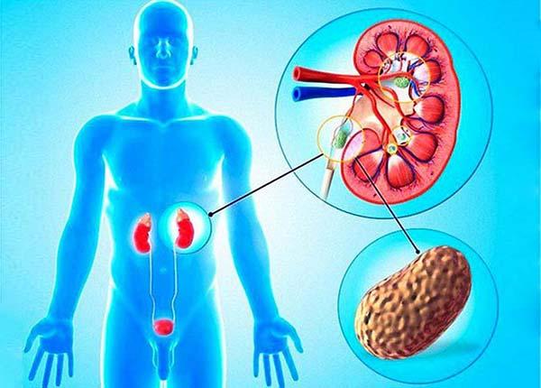 Những lưu ý quan trọng về bệnh sỏi tiết niệu - Ảnh 1