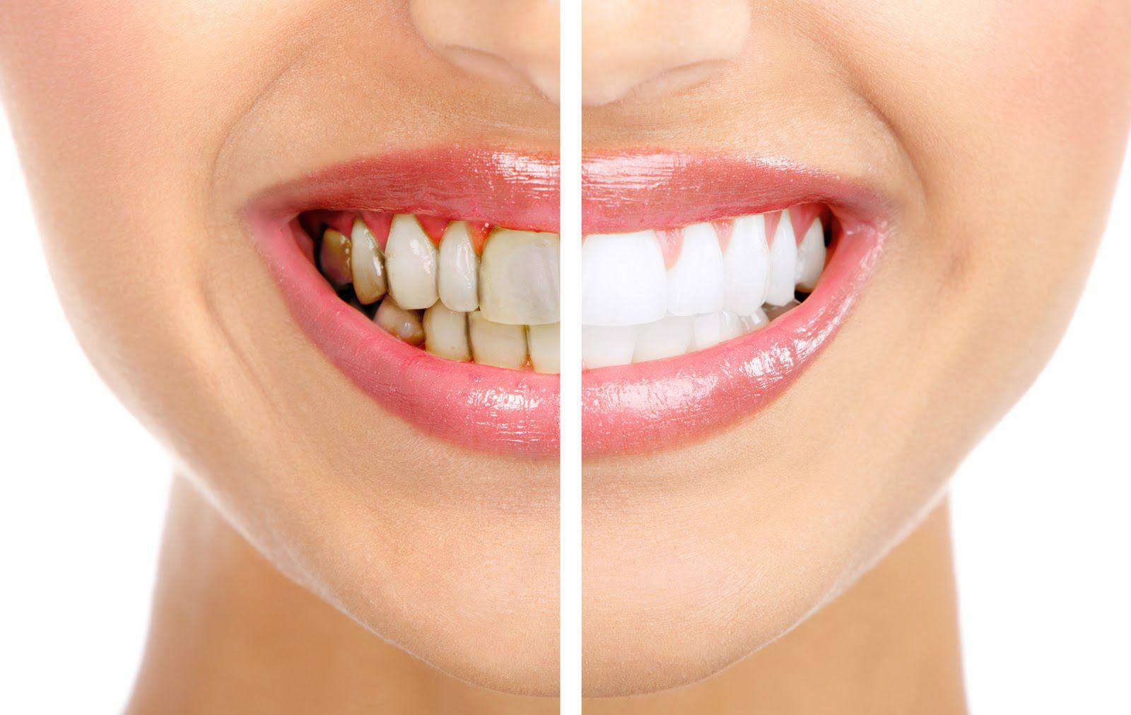 Làm trắng răng bằng chanh có thực sự hiệu quả như lời đồn? 1