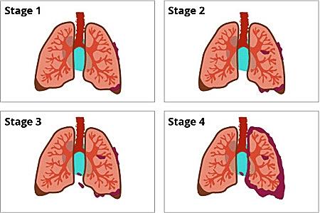 Mỗi loại ung thư phổi có cách xâm lấn khác nhau trong cơ thể.