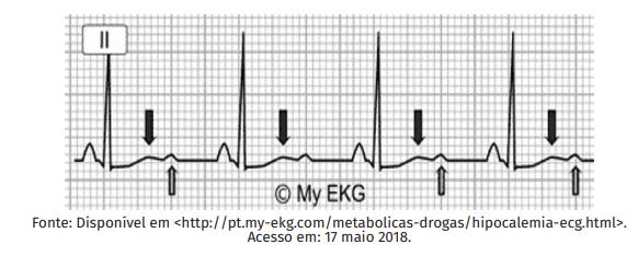 Hipotassemia no ECG - Sanarmed