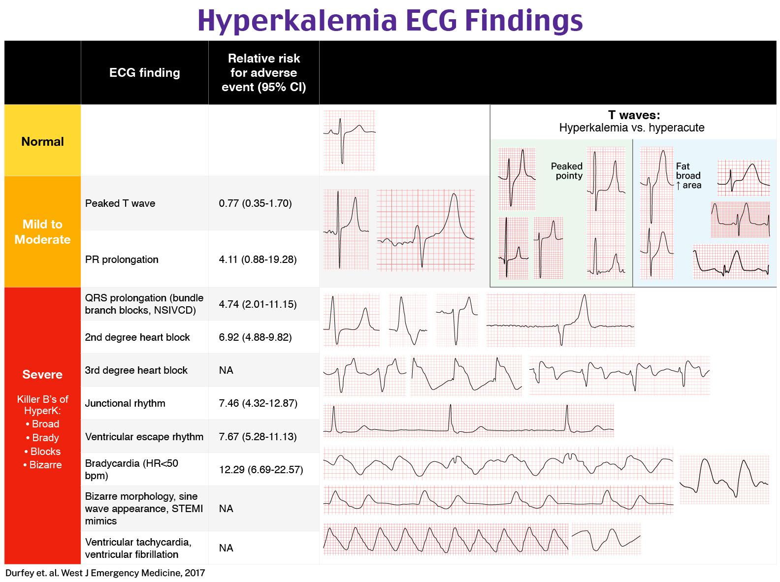 Hyperkalemia ECG findings