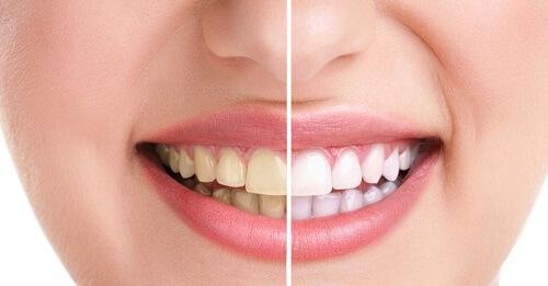 Tẩy trắng răng có ảnh hưởng gì không - công nghệ nào tốt? 1