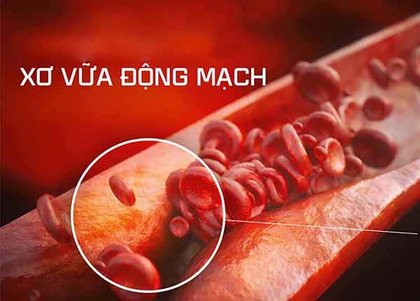 Những phương pháp điều trị bệnh xơ vữa động mạch - Ảnh 1