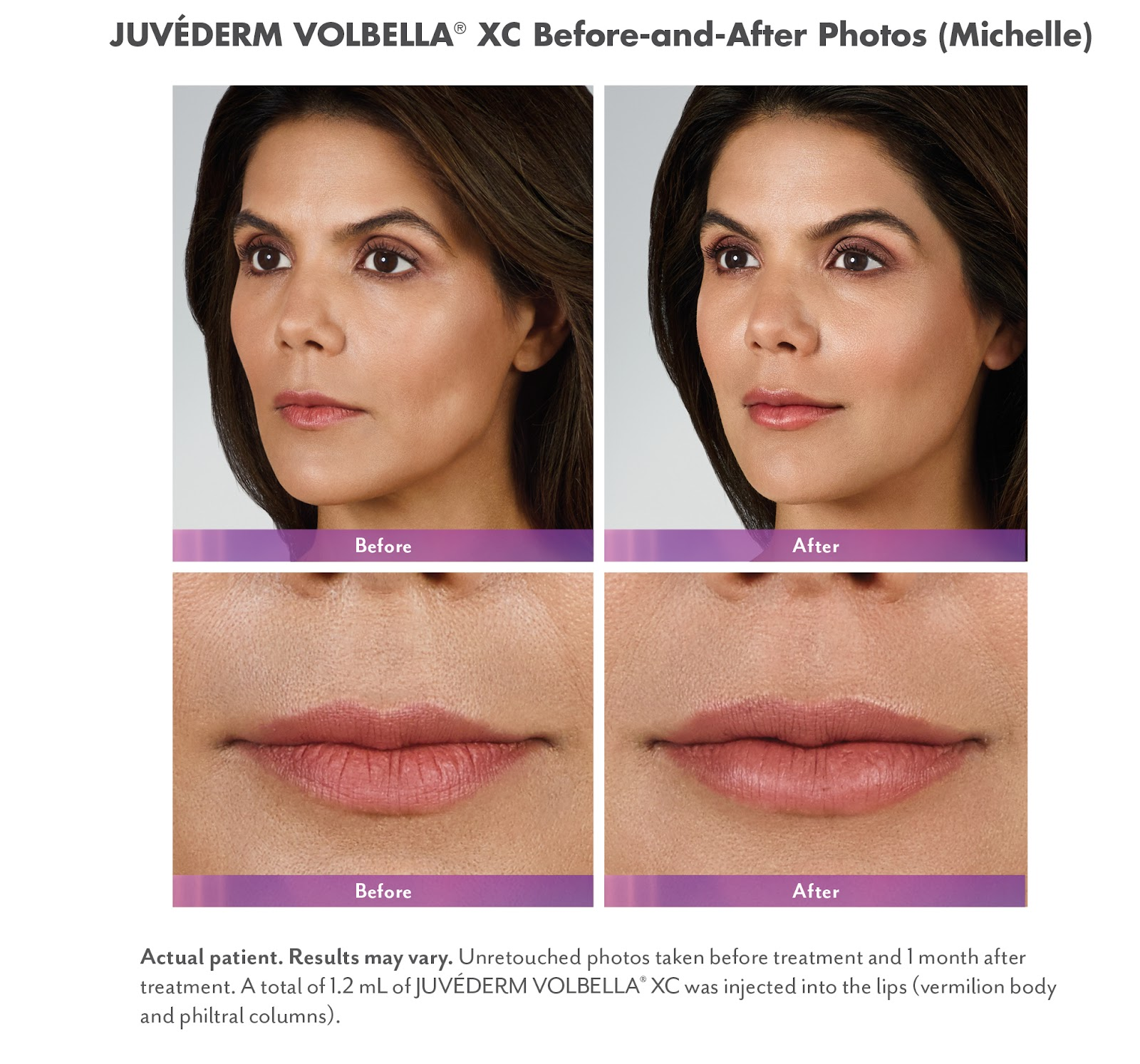 Mwah! Get Oh-So-Kissable Lips with Lip Fillers at Anderson MedSpa