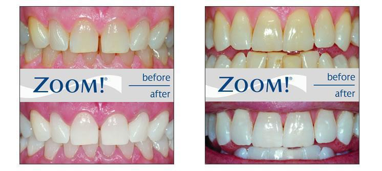 http://www.empathylaserclinic.com/teeth%20whitening.jpg