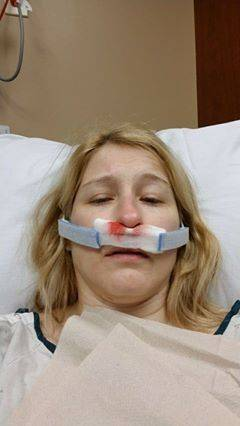 Nurse hospitalized after workplace injury