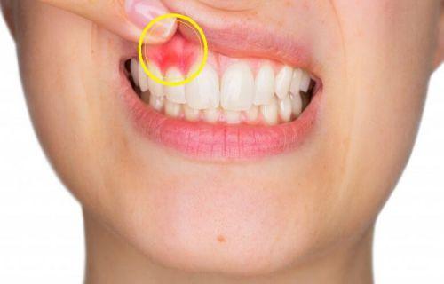 Tẩy trắng răng có hại hay ảnh hưởng gì đến sức khỏe răng miệng 1