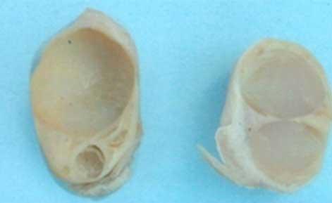 Cut surface of fluid filled follicular cysts on buffalo ovaries.