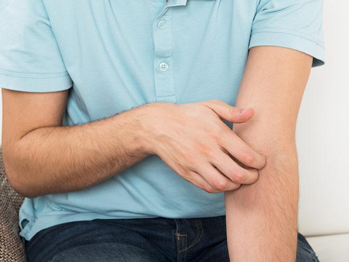 Ein Mann krazt sich am Arm - ein mögliches Anzeichen für Juckreiz, der auf eine Diabetes-Erkrankung zurückzuführen ist.