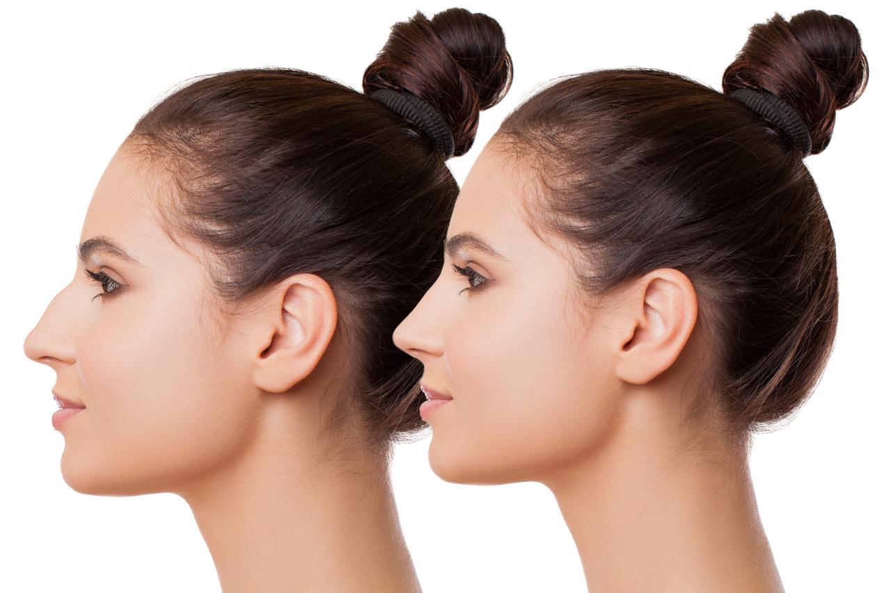 ưu điểm nâng mũi high line