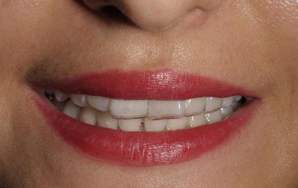 Mắc cài tự buộc trong niềng răng là gì? - Nha Khoa Bally 1