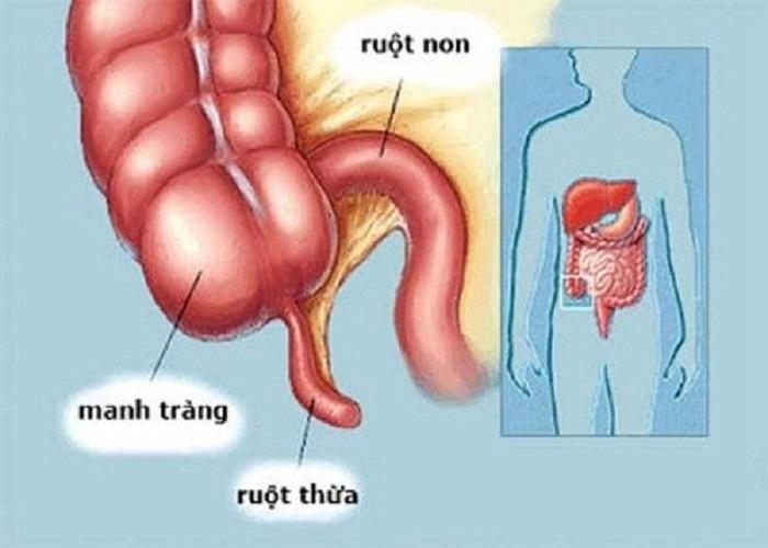 Vị trí của ruột thừa