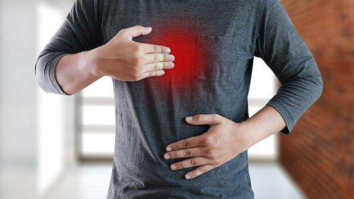 what drugs are used for acid reflux