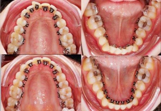 Niềng răng mặt trong giá bao nhiêu tiền - Chi phí hợp lí nhất tại Hà Nội