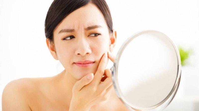 Quy trình các bước chăm sóc da mụn hiệu quả chỉ sau 2 tuần