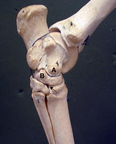 The site of centesis of the distal intertarsal joint is found by identifying the easily palpable medial eminence of the talus