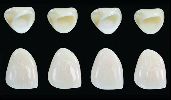 Răng sứ không kim loại giá bao nhiêu ưu đãi nhất T8 - 2018