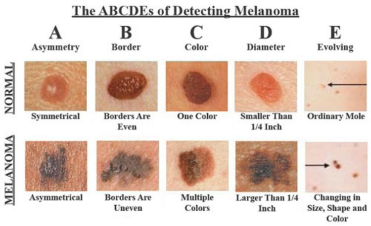 melanoma vs age spot