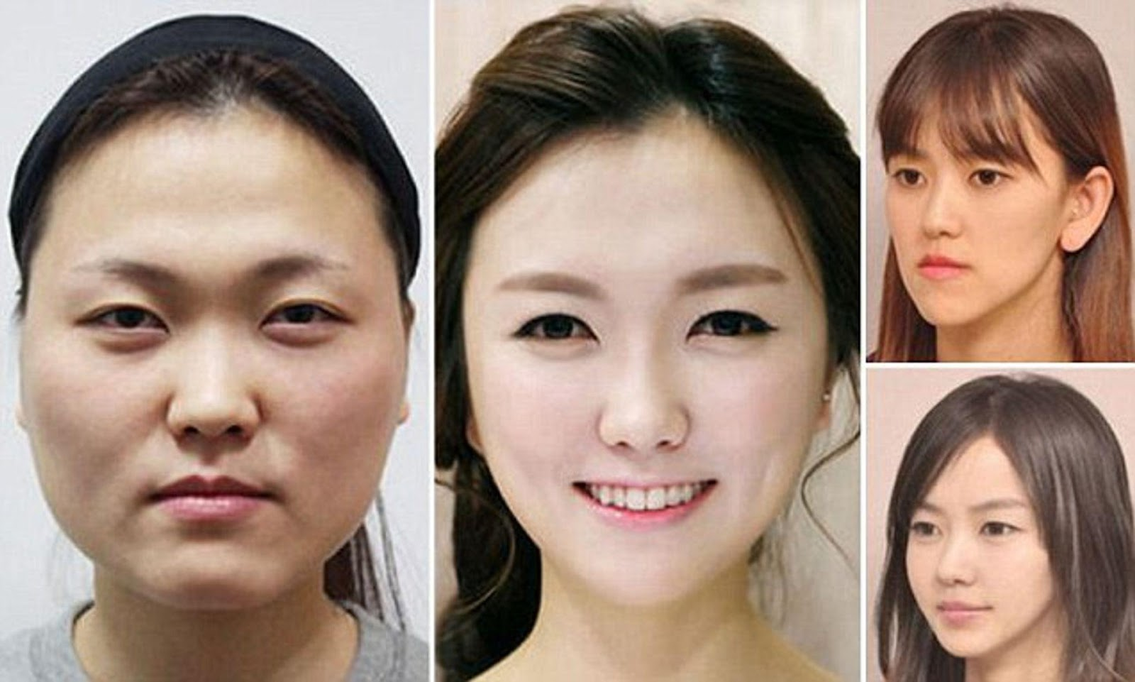 article-2610231-1D43C35A00000578-693_636x382.jpg V-line jaw surgery