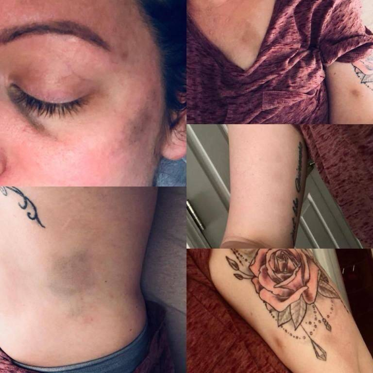 Woman with multiple bruises from workplace injury