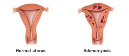 adenomyosis vs normal uterus