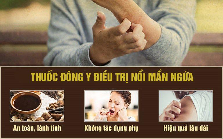 Cách chữa nổi mề đay khi mang thai bằng Đông y