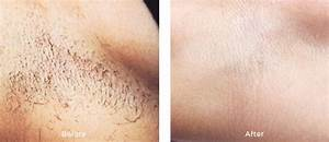 hair removal in miami