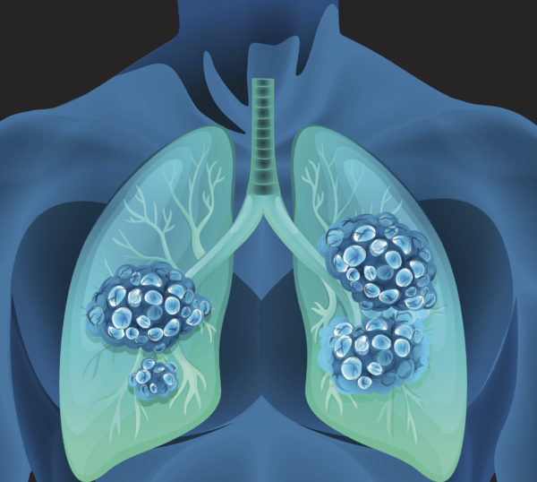 Air pollution reduces lung growth in children