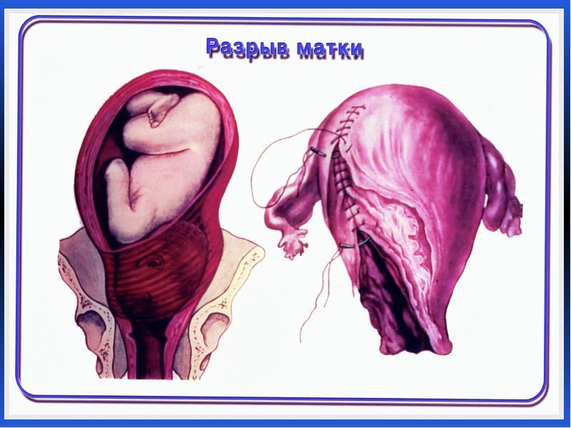 Разрыв матки
