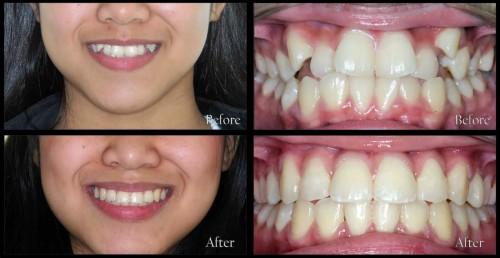 Có cách nào niềng răng không nhổ răng mà vẫn hiệu quả không? 1
