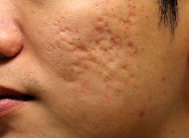 How to remove acne holes