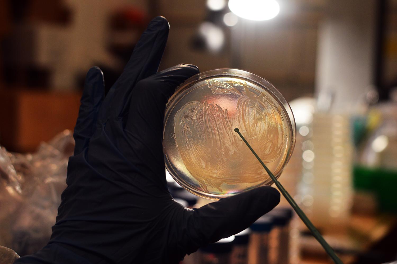 Bacteriainocloop.jpg