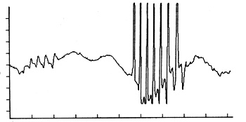 Complex repetitive discharges recorded in an extensor muscle of the forearm of a dog