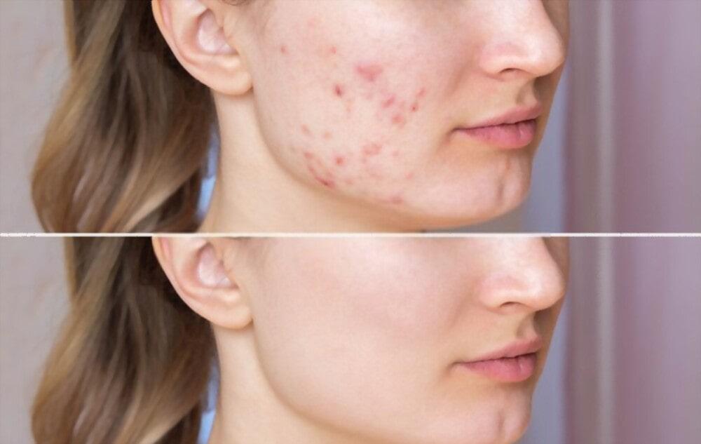 Accutane treat severe acne