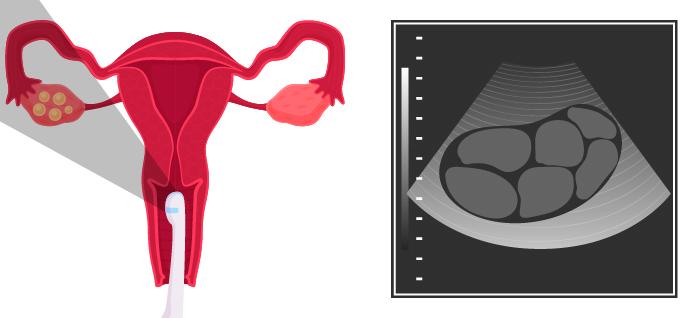 ilustração ultrassom transvaginal