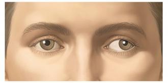 amblyopia.jpg