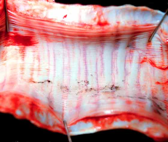 Normal appearance of the trachea showing postmortem congestion of submucosal vessels in between cartilage rings.