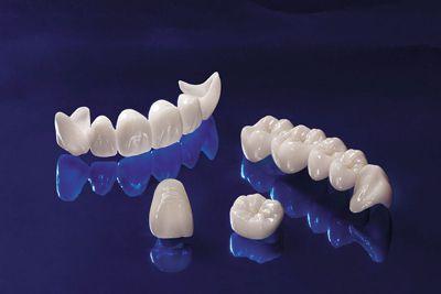 Các loại răng sứ phổ biến hiện nay và ưu nhược điểm 1