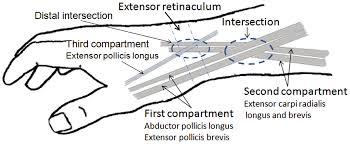 Image result for intersection syndrome ultrasound