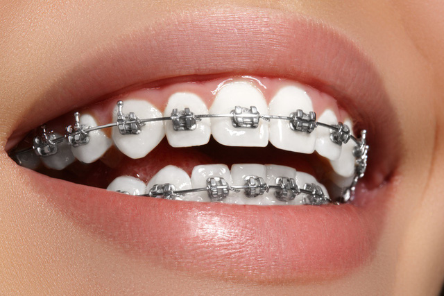 Niềng răng giá rẻ nhất là bao nhiêu?