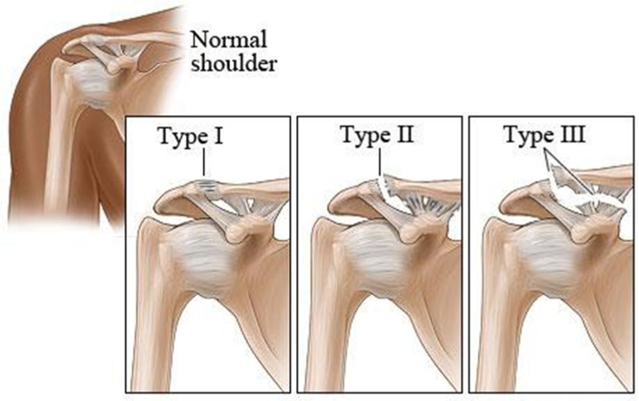 AC Joint Separation | Brisbane Knee and Shoulder Clinic | Dr  MacgroartyBrisbane Knee and Shoulder Clinic