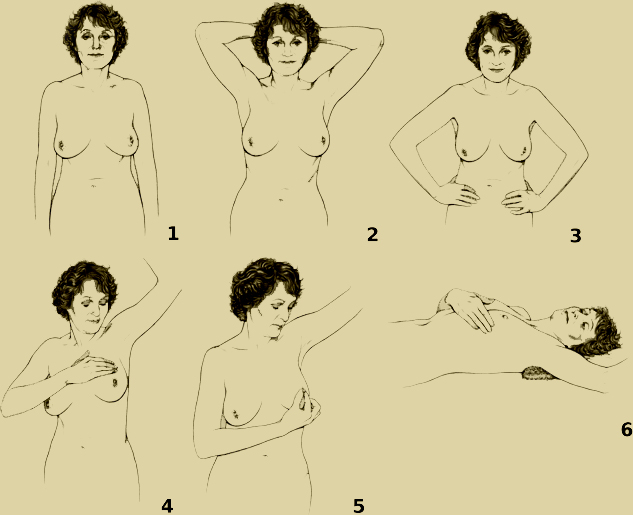 Six step diagram of how to perform a breast self-exam.