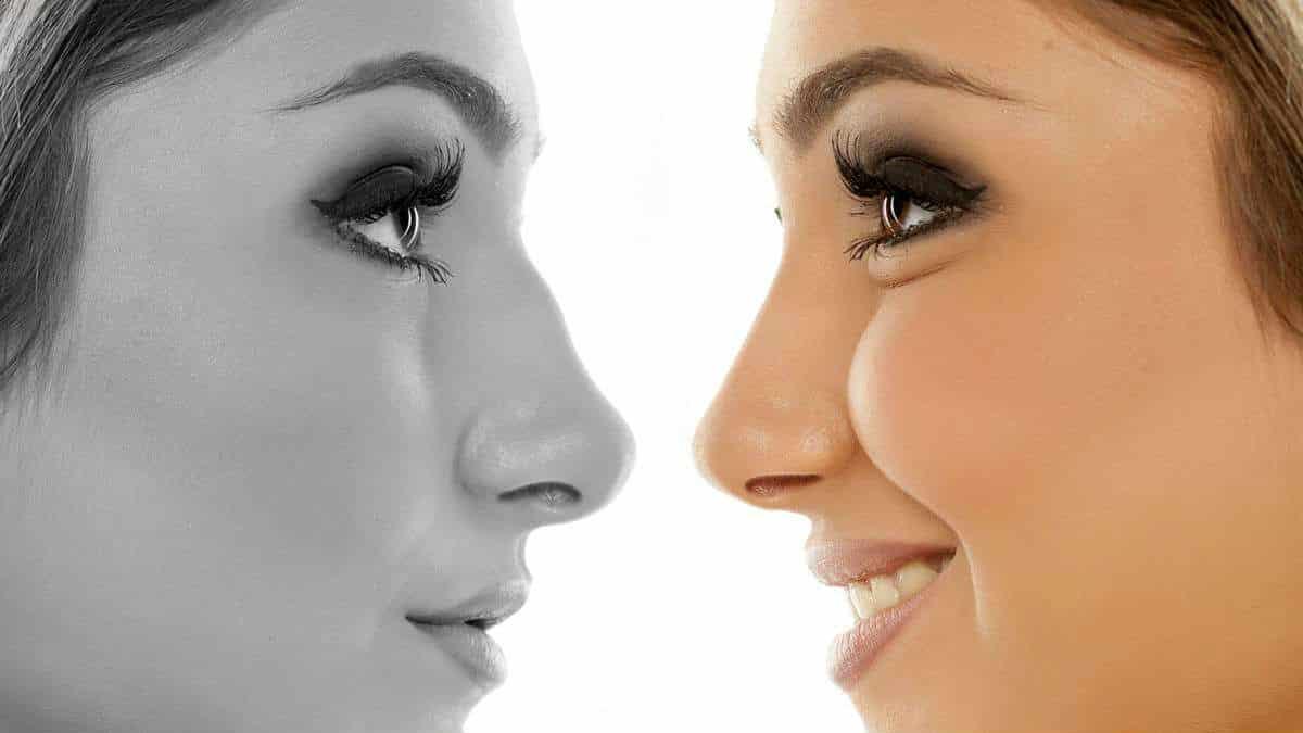 مدل های عمل زیبایی بینی