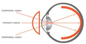 Myopia axial length