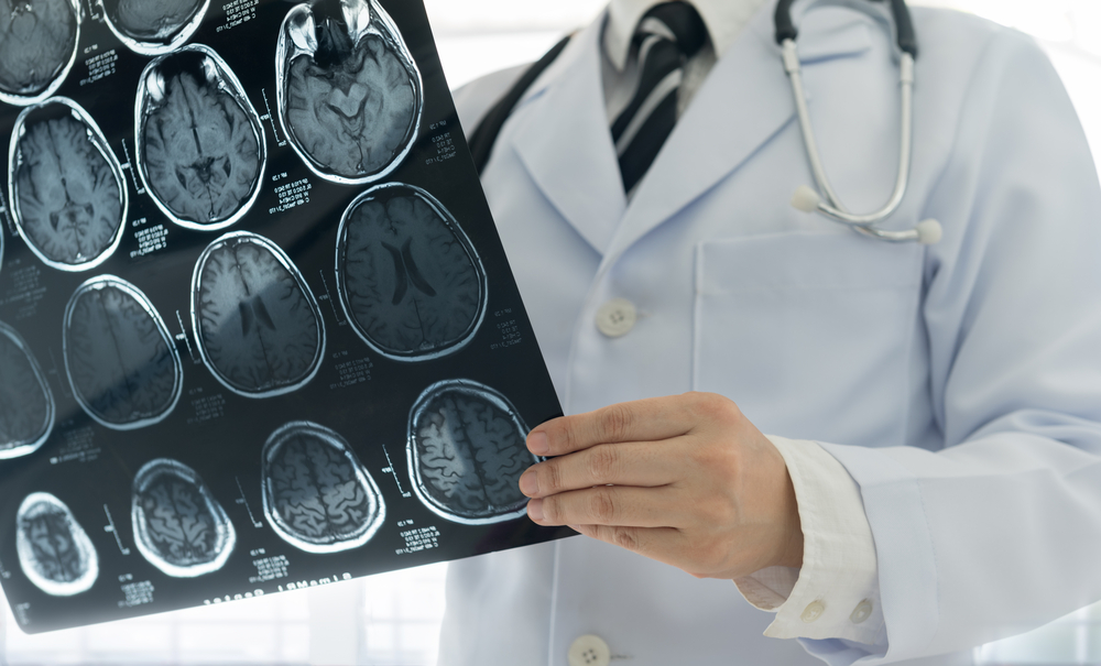 Exames de imagem podem indicar lesão no cérebro e riscos de câncer secundário. (Fonte: Shutterstock)