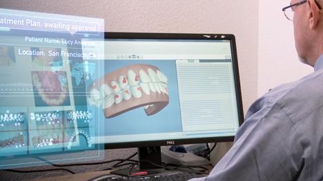 Niềng Răng Không mắc Cài Invisalign là gì? và Tại sao niềng răng 1