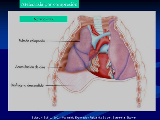 atelectasia por compresion.jpg